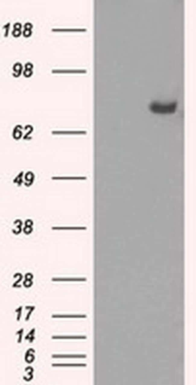 POR Antibody in Western Blot (WB)