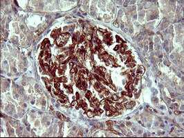 PPAP2A Antibody in Immunohistochemistry (Paraffin) (IHC (P))