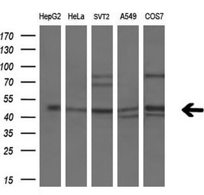 PPARA Antibody in Western Blot (WB)