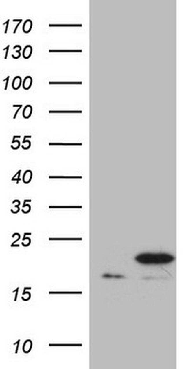 PPIF Antibody in Western Blot (WB)