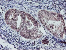 PPP1R15A Antibody in Immunohistochemistry (Paraffin) (IHC (P))