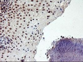 PPP1R15A Antibody in Immunohistochemistry (Paraffin) (IHC (P))