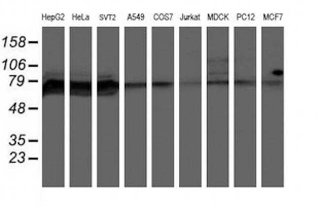 PPP1R15A Antibody in Western Blot (WB)