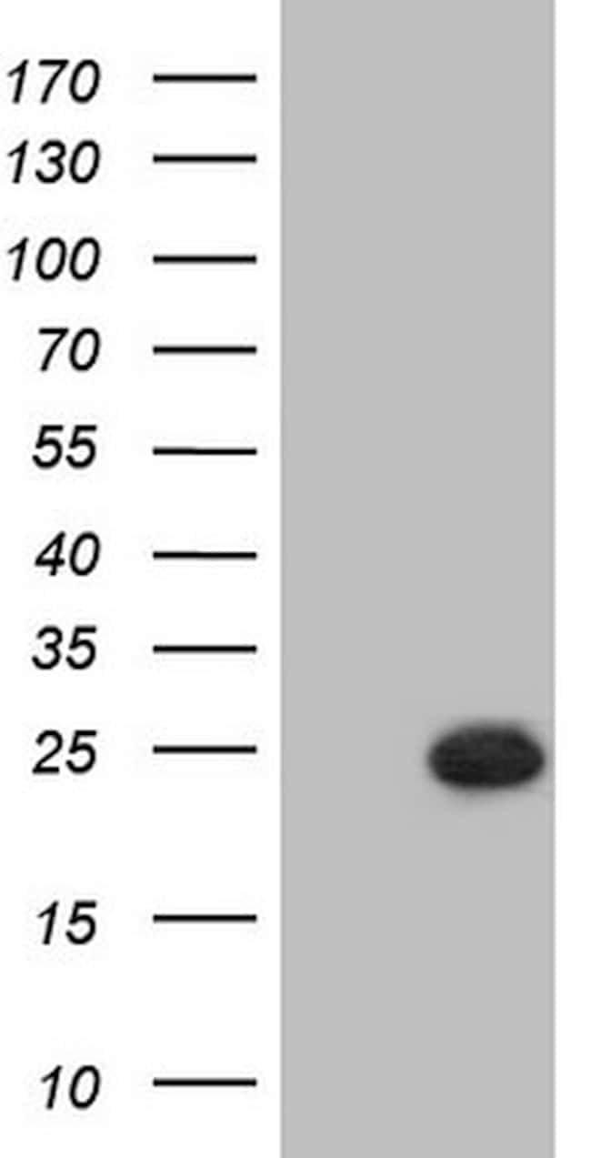 PPP1R17 Antibody in Western Blot (WB)