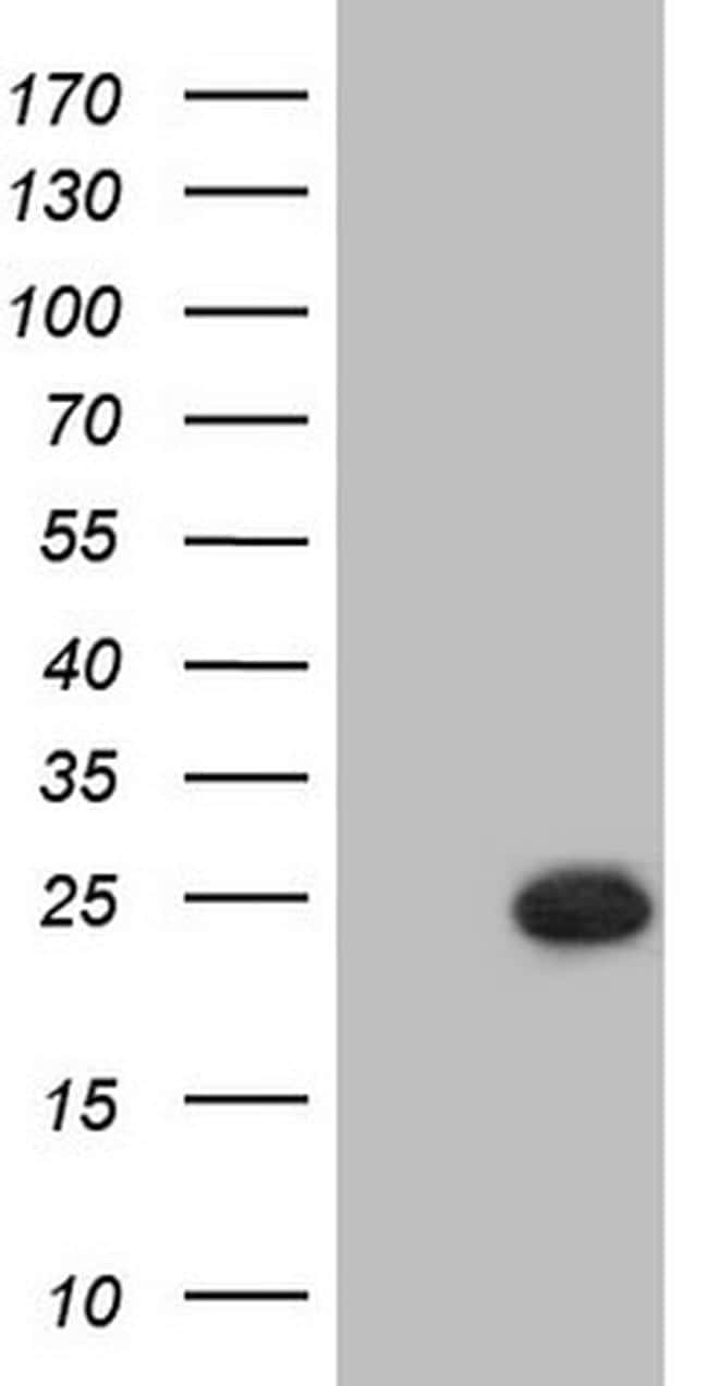 PPP1R17 Antibody in Western Blot (WB)