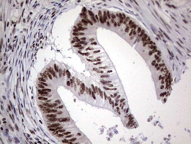 PPP1R8 Antibody in Immunohistochemistry (Paraffin) (IHC (P))