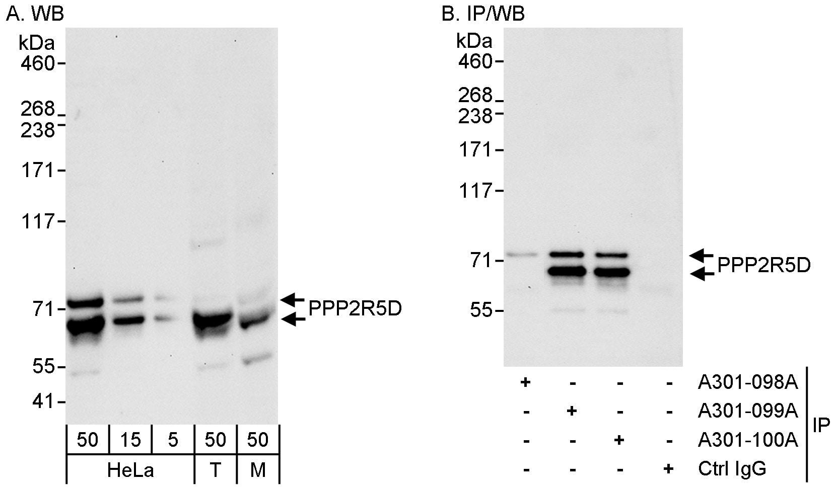 PPP2R5D Antibody in Western Blot (WB)