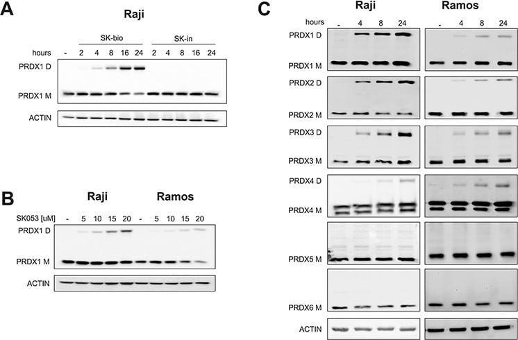 PRDX5 Antibody
