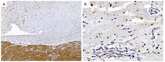 PRKAR1A Antibody in Immunohistochemistry (Paraffin) (IHC (P))