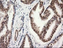 PRKCE Antibody in Immunohistochemistry (Paraffin) (IHC (P))