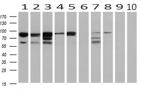 PRKCE Antibody in Western Blot (WB)