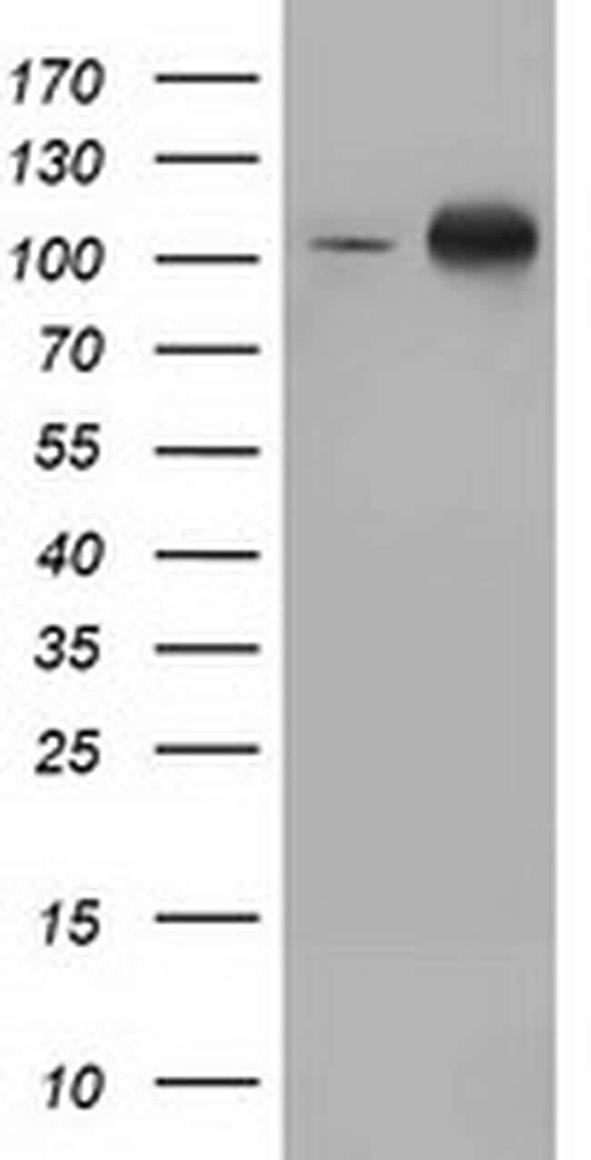 PRKD2 Antibody in Western Blot (WB)