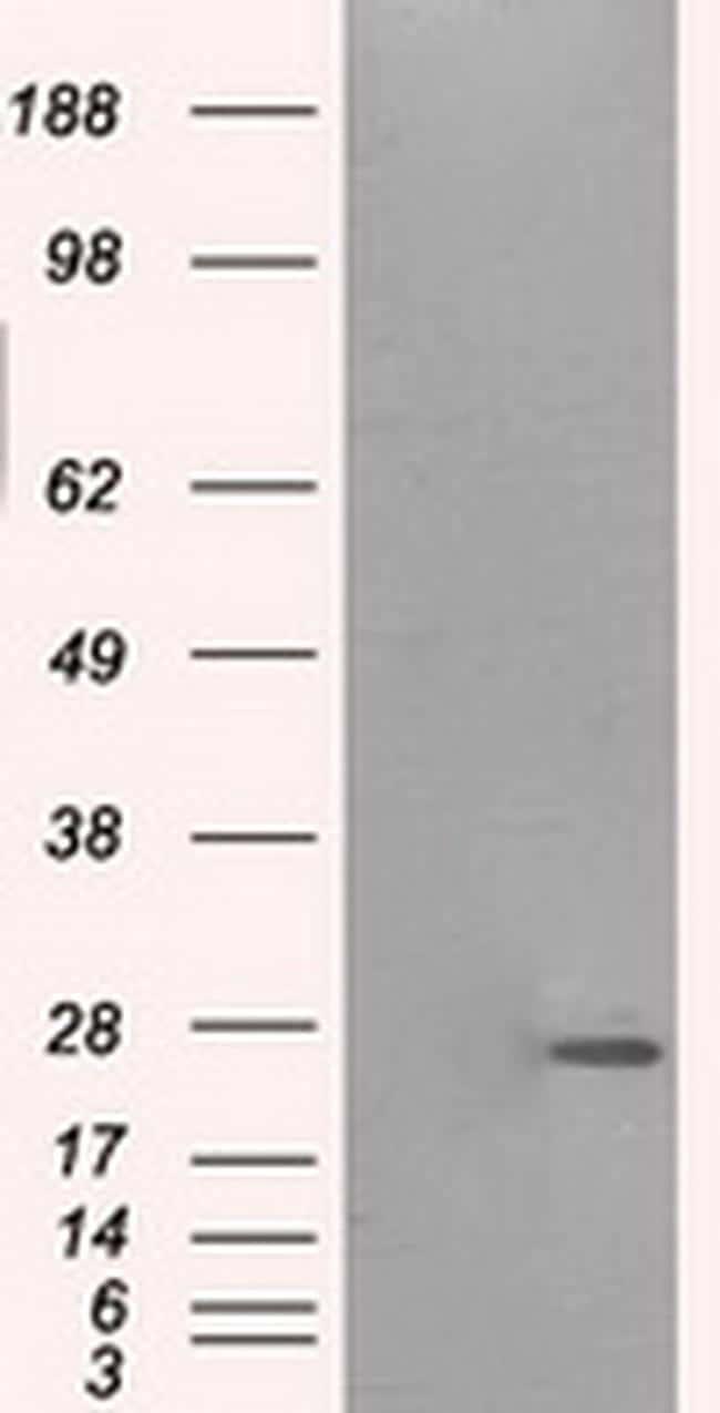 PRL Antibody in Western Blot (WB)