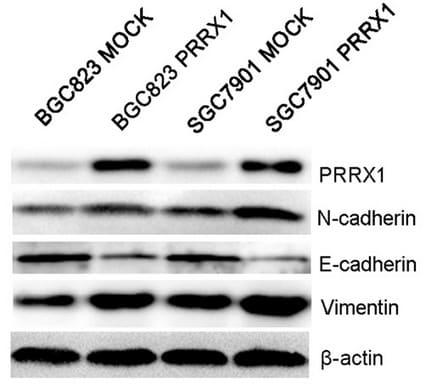 PRRX1 Antibody in Western Blot (WB)