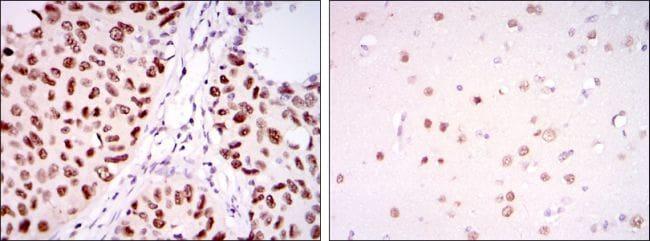 PSIP1 Antibody in Immunohistochemistry (IHC)