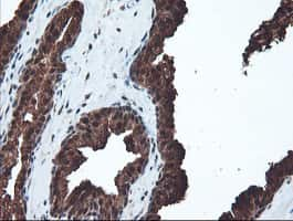 PSMA6 Antibody in Immunohistochemistry (Paraffin) (IHC (P))