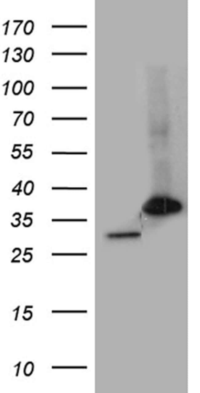 PSMA7 Antibody in Western Blot (WB)
