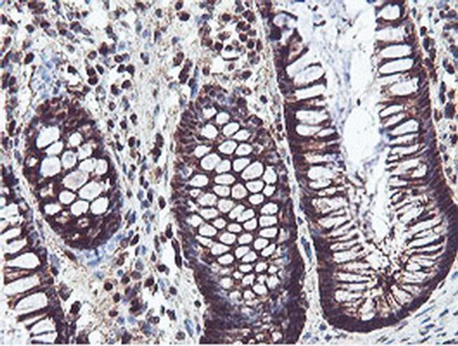 PSMB7 Antibody in Immunohistochemistry (Paraffin) (IHC (P))