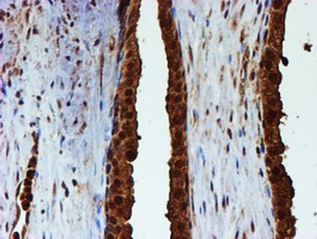PSMB9 Antibody in Immunohistochemistry (Paraffin) (IHC (P))