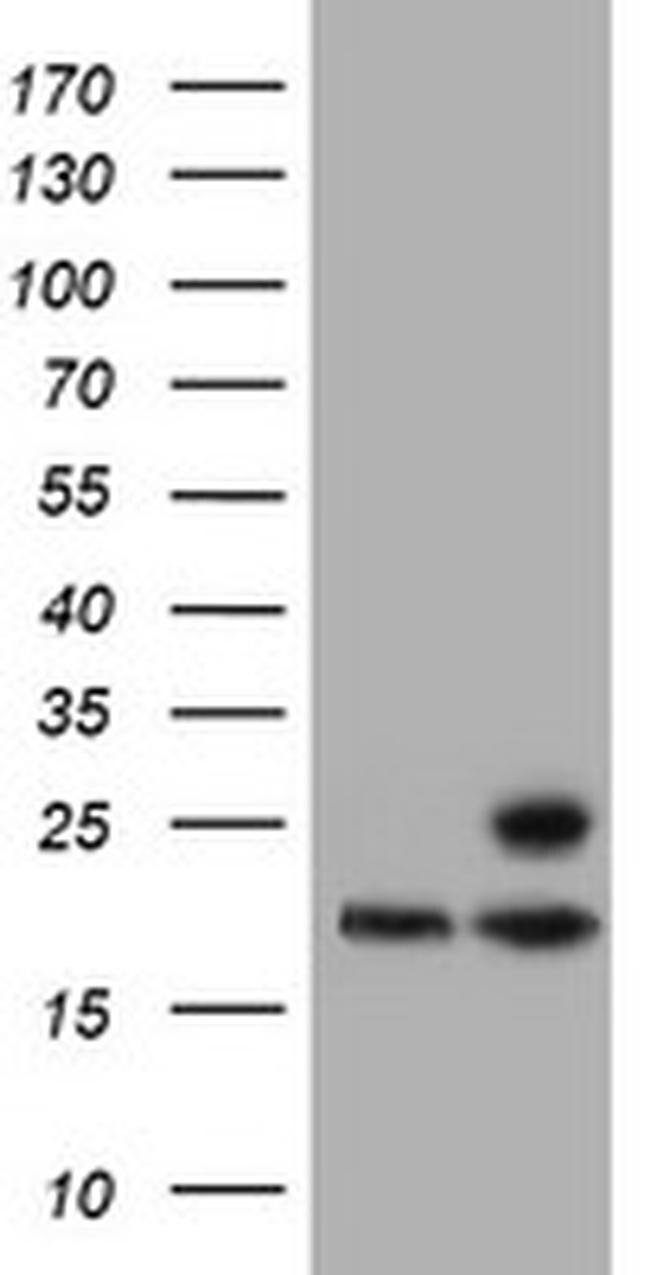 PSMB9 Antibody in Western Blot (WB)