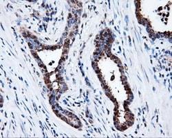 PSMC3 Antibody in Immunohistochemistry (Paraffin) (IHC (P))