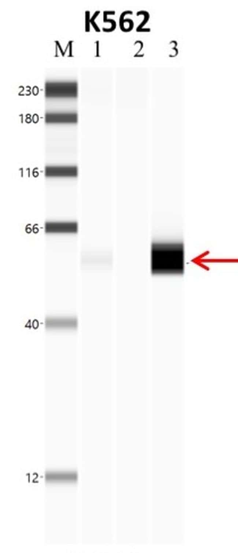 PTBP1 Antibody in Immunoprecipitation (IP)