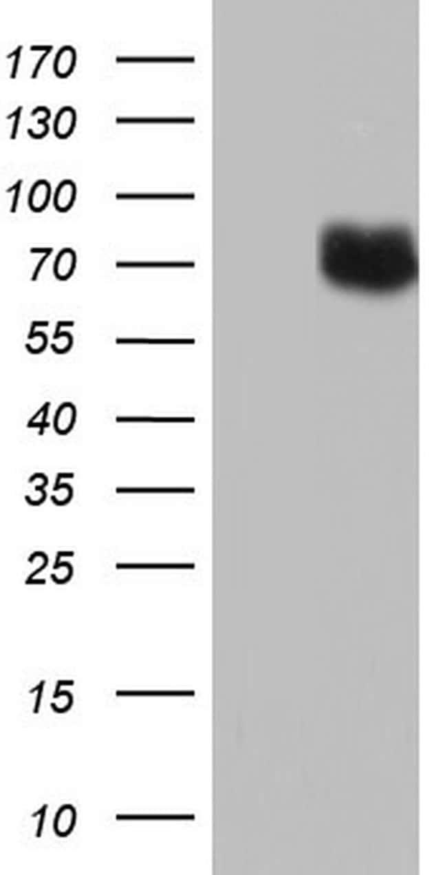 PTGS2 Antibody in Western Blot (WB)