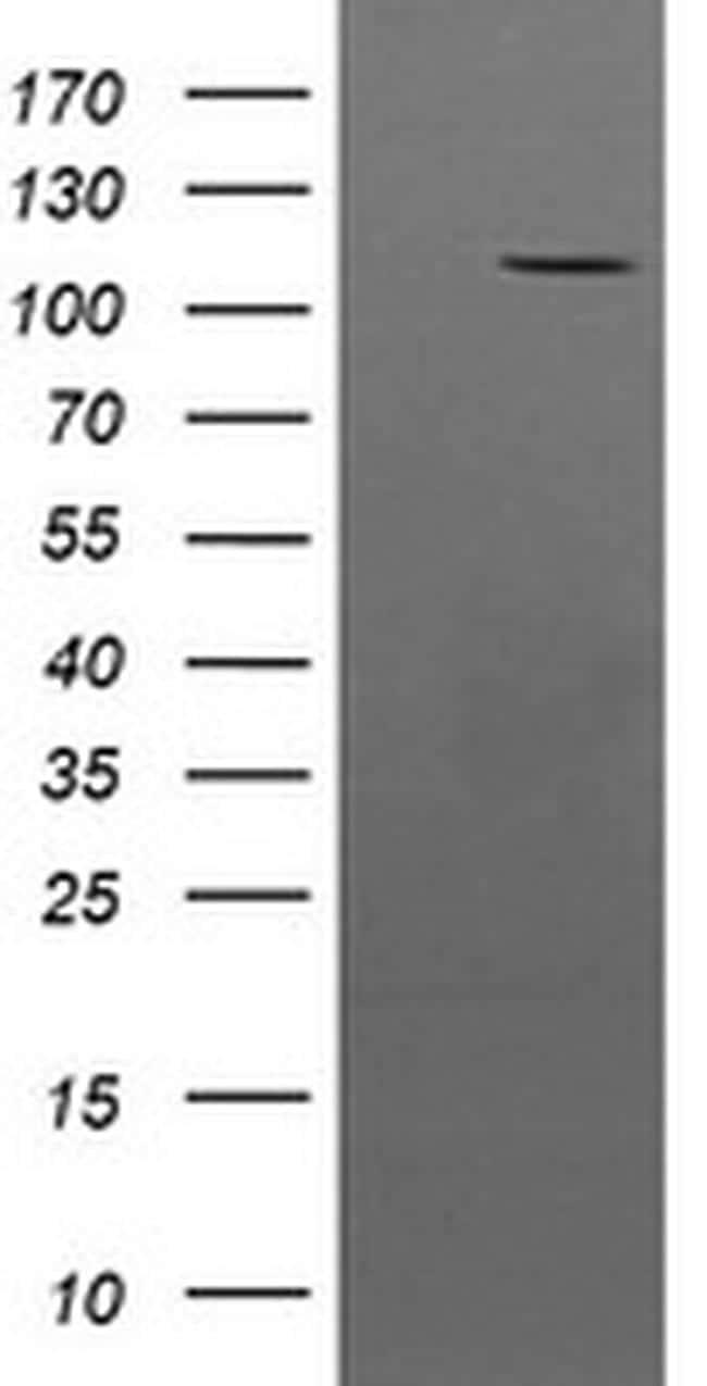 PTK7 Antibody in Western Blot (WB)