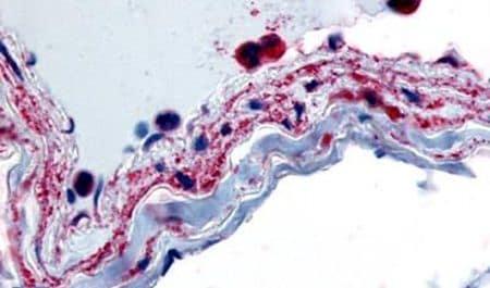 PTPMT1 Antibody in Immunohistochemistry (Paraffin) (IHC (P))