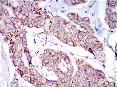 SHP2 Antibody in Immunohistochemistry (IHC)