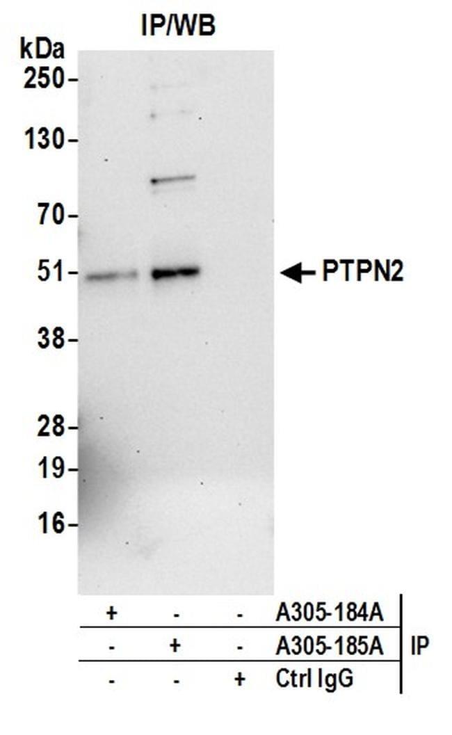 PTPN2/TCPTP Antibody in Immunoprecipitation (IP)