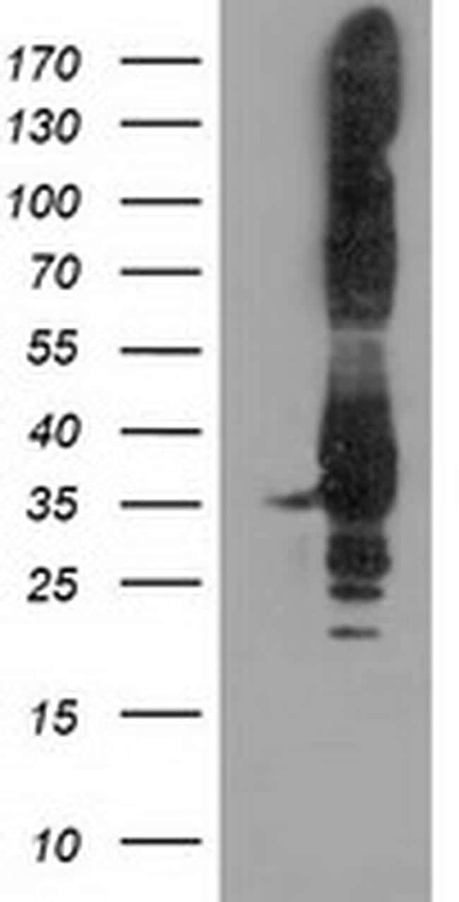 PYCR2 Antibody in Western Blot (WB)