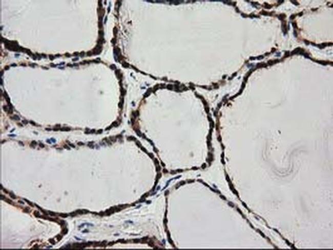 PYCRL Antibody in Immunohistochemistry (Paraffin) (IHC (P))