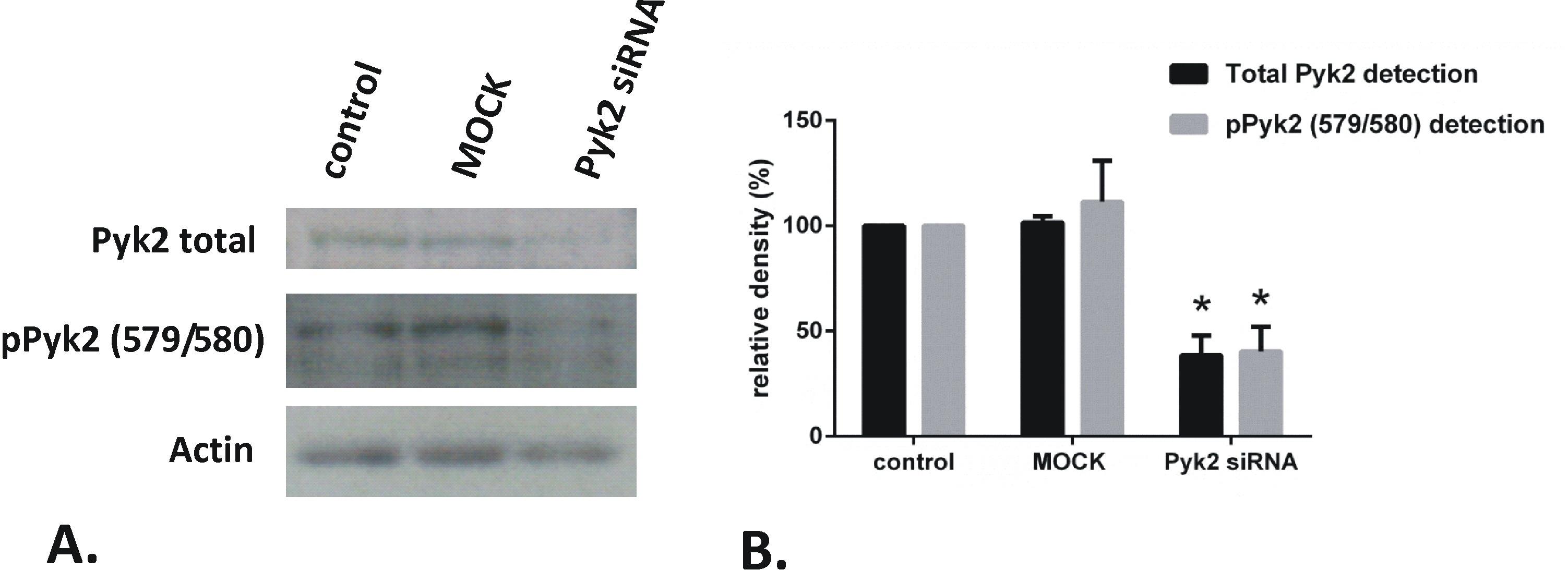 Phospho-PYK2 (Tyr579, Tyr580) Antibody in Western Blot (WB)