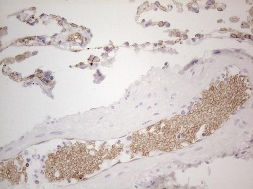 Pan-CDH Antibody in Immunohistochemistry (Paraffin) (IHC (P))