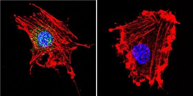 Parvalbumin Antibody in Immunofluorescence (IF)