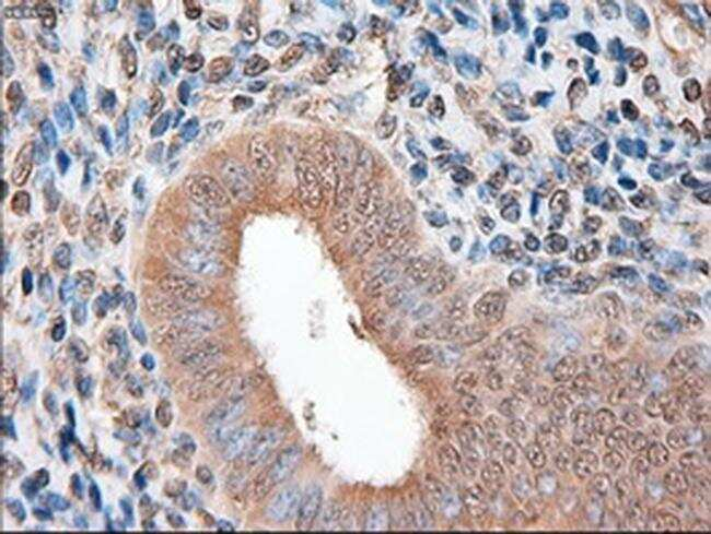 Patched1 Antibody in Immunohistochemistry (Paraffin) (IHC (P))