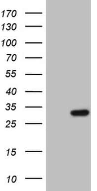 Patched1 Antibody in Western Blot (WB)