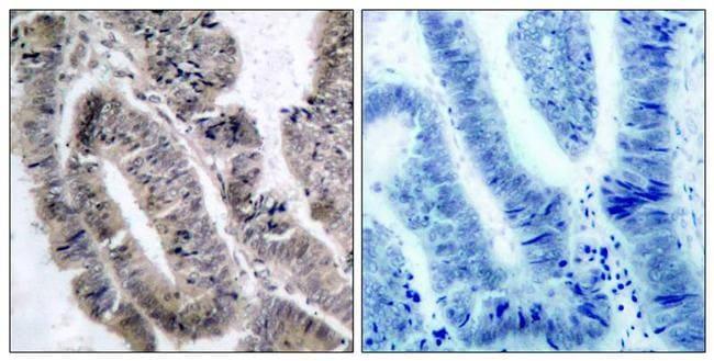 Phospho-AMPK alpha-1 (Ser496) Antibody in Immunohistochemistry (Paraffin) (IHC (P))