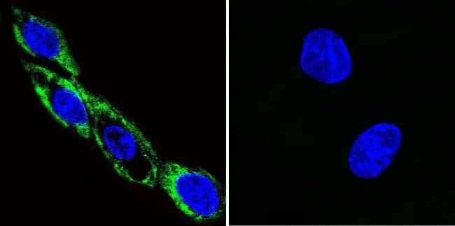 Phospho-CaMKII alpha (Thr286) Antibody in Immunofluorescence (IF)