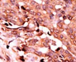 Phospho-Caspase 6 (Ser257) Antibody in Immunohistochemistry (IHC)