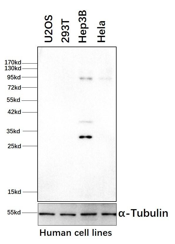 Phospho-GYS1 (Ser641, Ser645) Antibody in Western Blot (WB)
