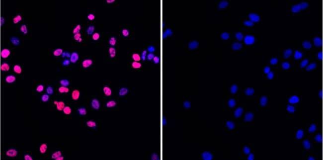 Phospho-Histone H2A.X (Ser139) Antibody in Immunofluorescence (IF)