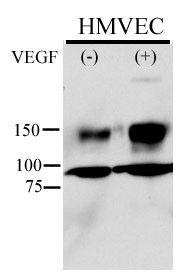 Phospho-VEGF Receptor 2 (Tyr996) Antibody in Western Blot (WB)