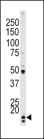 Phospho-p21 (Thr145) Antibody in Western Blot (WB)