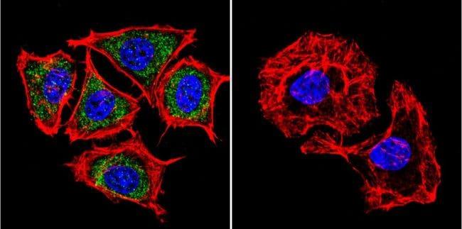 PSEN2 Antibody in Immunofluorescence (IF)
