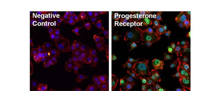 Progesterone Receptor Antibody in Immunofluorescence (IF)