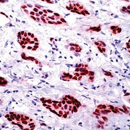 Progesterone Receptor Antibody in Immunohistochemistry (IHC)