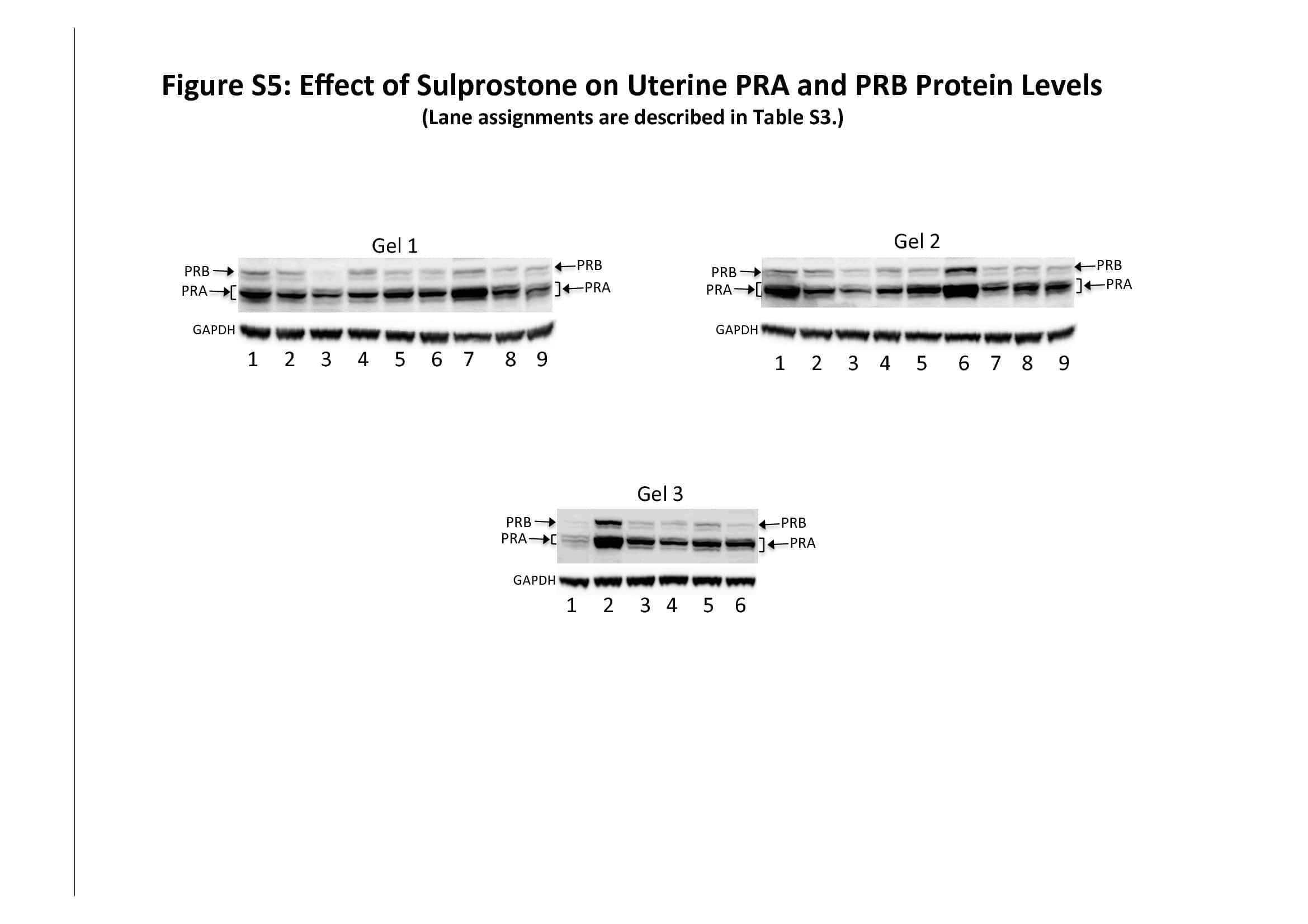 Progesterone Receptor Antibody