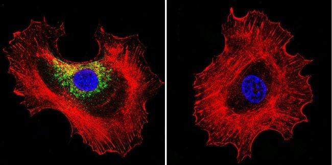 Prolactin Receptor Antibody in Immunofluorescence (IF)
